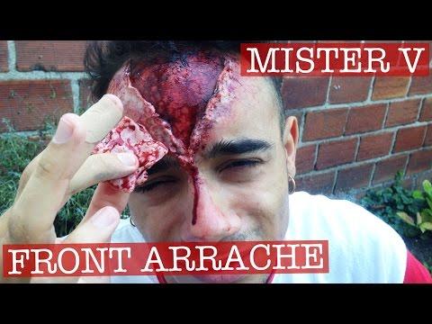 Maquillage Effets Spéciaux : Front Arraché sur Mister V