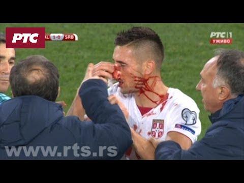 Vels – Srbija, Tejlor udara Tadića kopačkom u glavu
