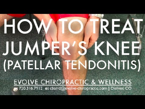 video:Easy Treatment for Jumper's Knee (Patellar Tendonitis) - Denver Tech Center Sports Chiropractor