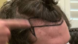 Video Art of Hairline Lowering Surgery Bald Temple Edge Restoration by Dr. Diep http://www.mhtaclinic.com MP3, 3GP, MP4, WEBM, AVI, FLV September 2018