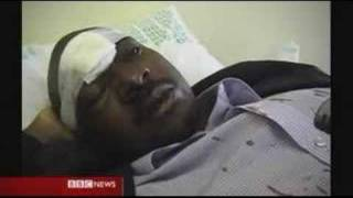 Watch Nelson Chamisa in hospital soon after being beaten by Mugabe's hired thugs at Harare International Airport.