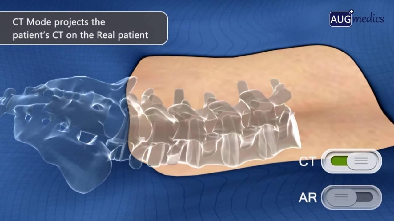 סרטון להצגת מוצר בכנס חדשנות רפואית