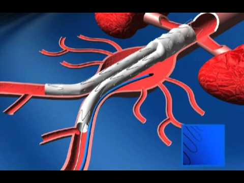PREVENTIVE TREATMENT OF TYPE II ENDOLEAK WITH BIOMATERIALS (PART 2)-Vascular Surgery-