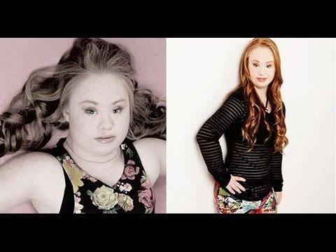 Madeline es una modelo con Síndrome de Down que conmociona las redes sociales