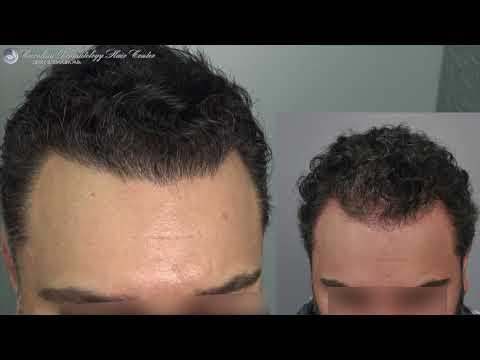 Hairline Repair - FUT Hair Transplant Results- PRP ACell Dr. Cooley_A plasztikai sebészet kulisszatitkai. A legmodernebb eljárások, és orvosi hibák. Szilikon völgy