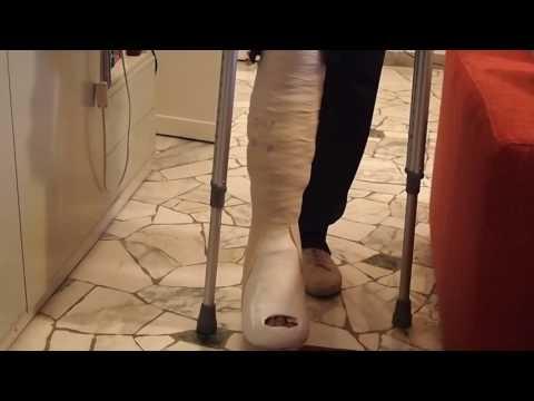 d 19 long cast on gesso lungo