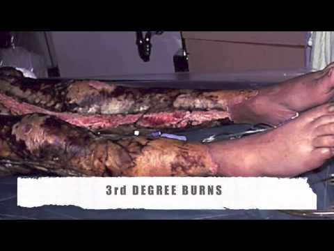 Patho Video  Skin Grafts for Burns