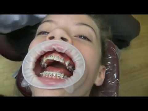 看我們是如何把你的牙套上!