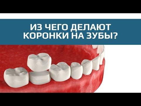 Разновидности зубных коронок