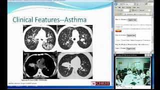 Bronchopulmonary Aspergillosus (Amanda Broebl, MD)
