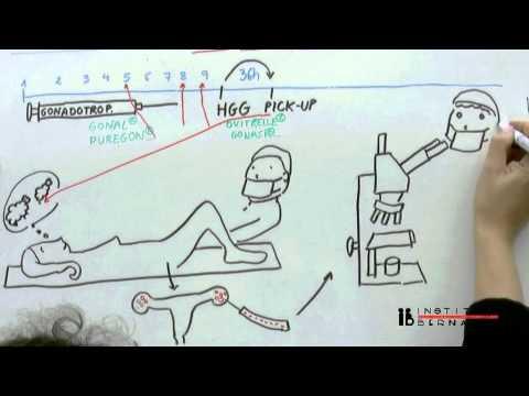 In Vitro Befruchtung (IVF) einfach erklärt