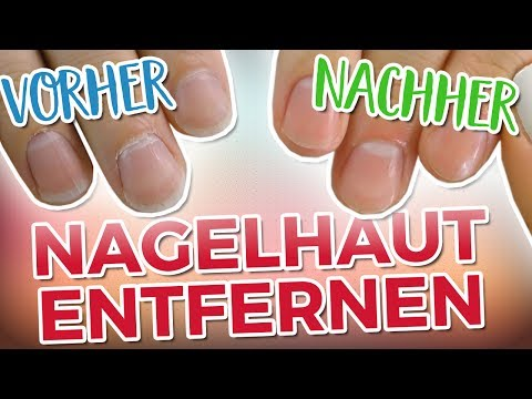 NAGELHAUT SCHNELL & EFFEKTIV ENTFERNEN! | Vorher - Nachher vergleich