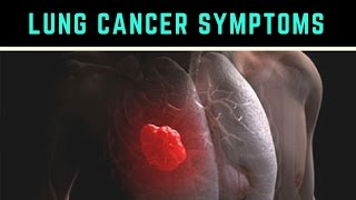 Lung Cancer · Life Expectancy · Causes Types · Symptoms ✫ Stages ✓ http://www.medicinenet.com/lung_cancer/article.htm ...