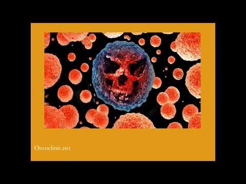 Kemoterapinin Zararları   Onco Clinic