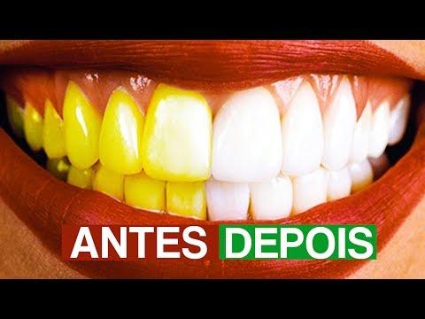 Como Clarear Os Dentes Em Mp3 Download Naijaloyal Co