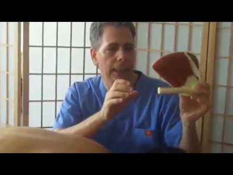 comment guerir bursite epaule
