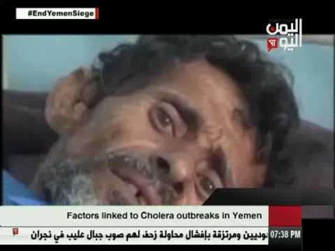 Yemen Today Channel English News 7 5 2017
