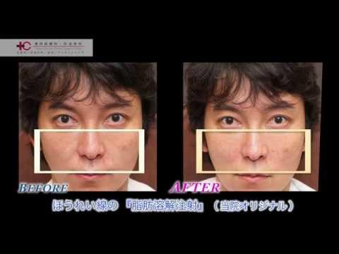 ほうれい線のイリュージョン注射/東京皮膚科・形成外科