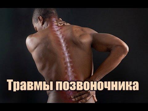 Травмы позвоночника при занятиях силовой нагрузкой