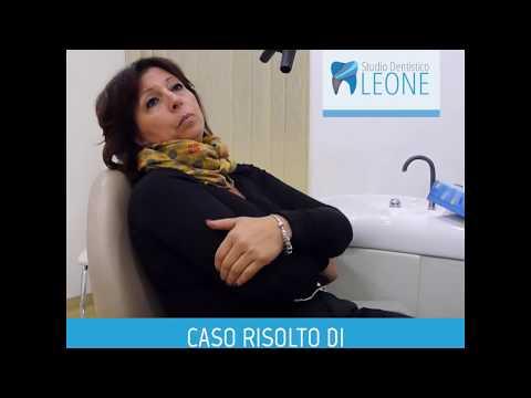Casi clinici: clic alla mandibola