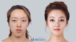 Video Double Jaw Surgery Asymmetrical Face, Korea Plastic Surgery  Let Me In TV Show, MP3, 3GP, MP4, WEBM, AVI, FLV November 2018