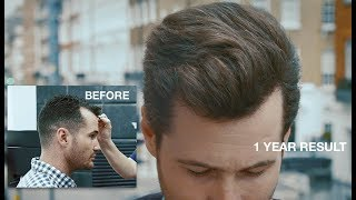 Video Paul's hair transplant result after 1 year MP3, 3GP, MP4, WEBM, AVI, FLV Juli 2018