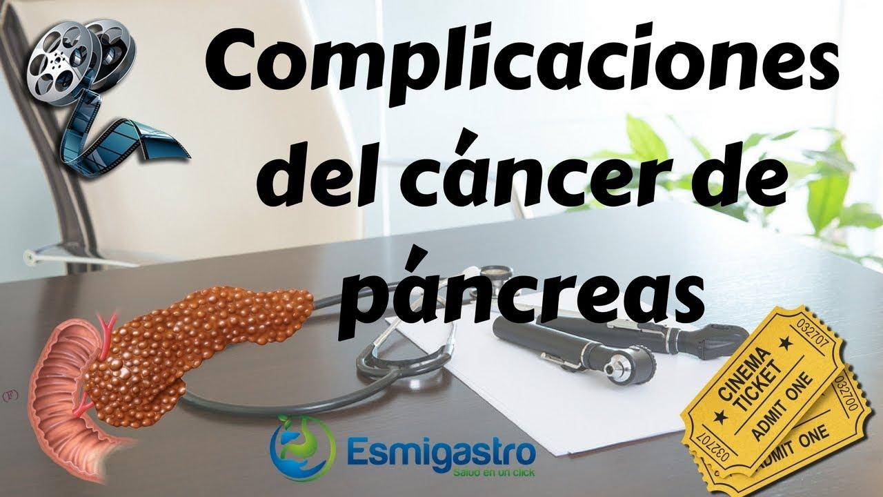 Complicaciones del cáncer de páncreas