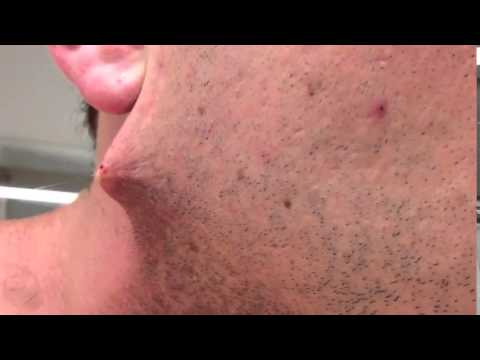 Man Shaves Off Beard and Finds This Underneath ... [Video]