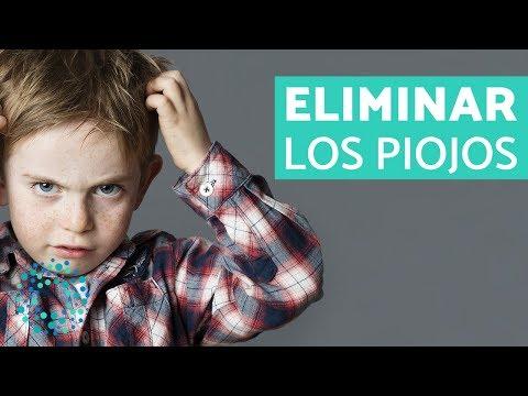 Videos caseros - Cómo ELIMINAR los PIOJOS DEFINITIVAMENTE