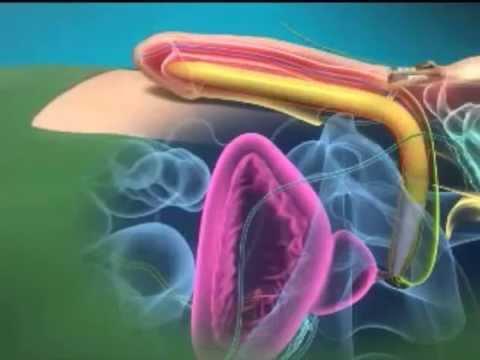 Erectile Dysfunction Treatment: Penile Prosthesis Surgery