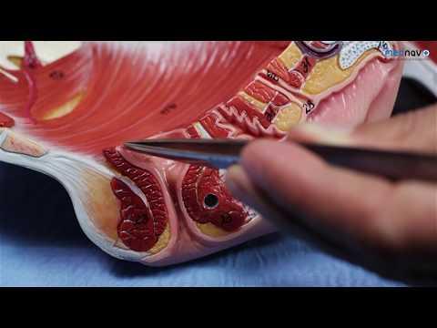 Anatomy of Perineum for Perineal repair