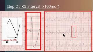 Advanced course - Ventricular tachycardia 속터지는 심전도 - 순천성가롤로병원 이두환