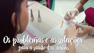 Os problemas e as soluções para a saúde das unhas
