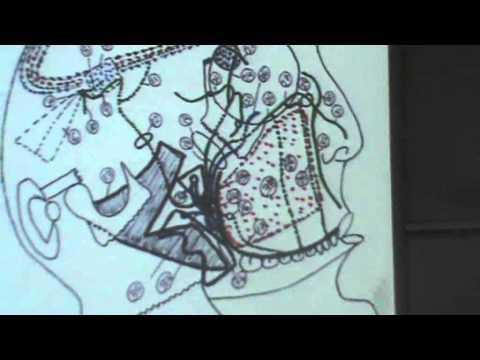 8) Dr.Ahmed Galal 23/10/2014 [ Otic ganglion - Maxillary nerve ]