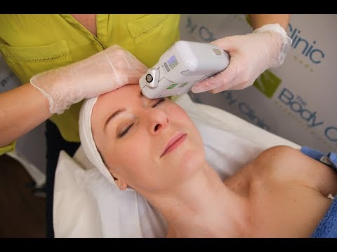 HIFU Non-Surgical Face Lift with the Doublo S