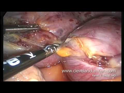 ovaries - A narrated, full-length total laparoscopic hysterectomy and removal of both ovaries for fibroids and pelvic pain. A Ligasure device is used to seal the vesse...