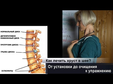 Хруст позвоночник шея