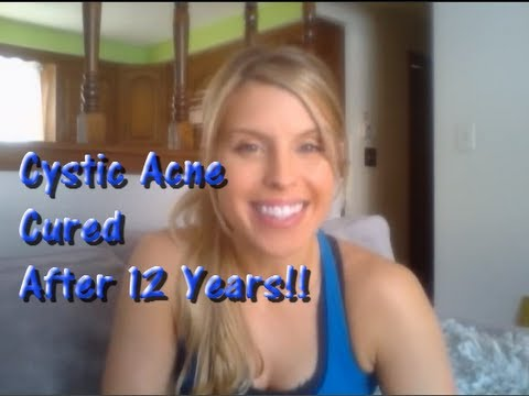 how to heal a cystic acne