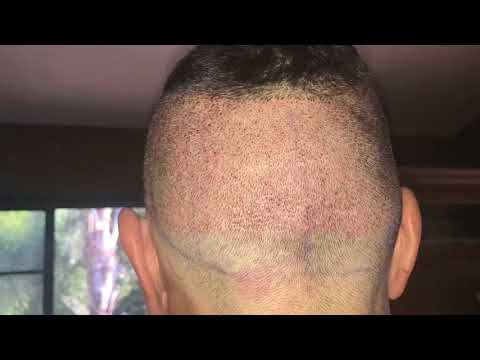 Dan Williams Hair Transplant With Dr. Ziering