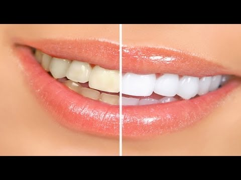 Beauty Tips – Simple steps for at home Teeth Whitening – Beauty Tips