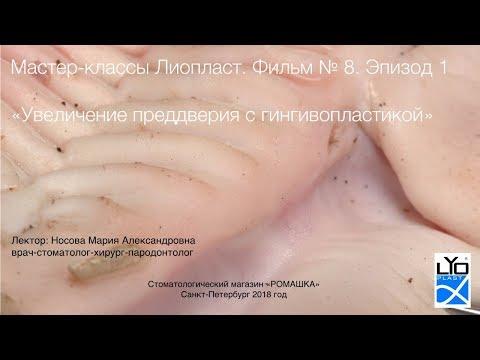 Мастер-класс Лиопласт 8.1 Увеличение преддверия поло-сти рта с гингивопластикой