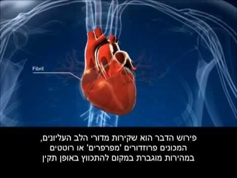 פעילות הלב במצב של פרפור פרוזדורים
