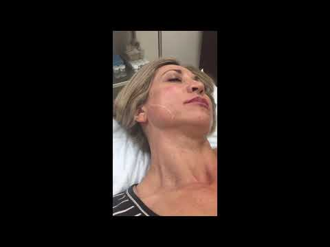 Botox injections to masseter muscle to narrow the jawline.