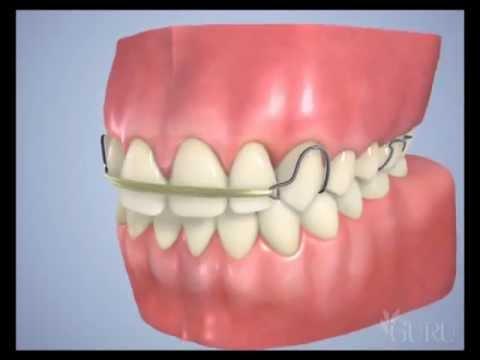 Appareil dentaire Amovible