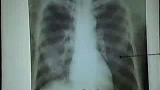 Video hình ảnh cơ ngực trên phim XQuang