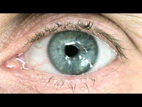 Jak vzniká slepota?