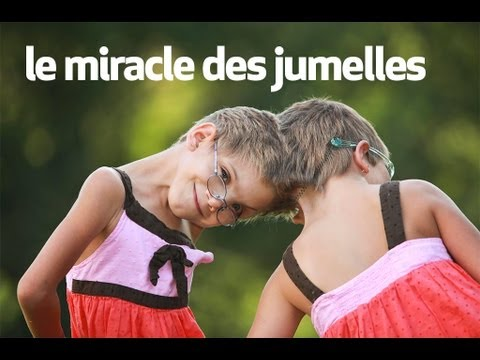 Video le miracle des jumelles : body bizarre download in MP3, 3GP, MP4, WEBM, AVI, FLV January 2017