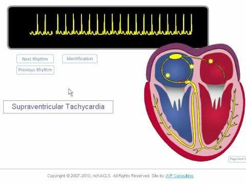 ECG Rhythm Review: SVT, Atrial Fibrillation, Atrial Flutter