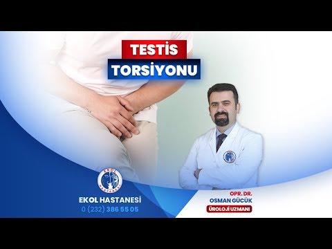 Testis Torsiyonu (Dönmesi)
