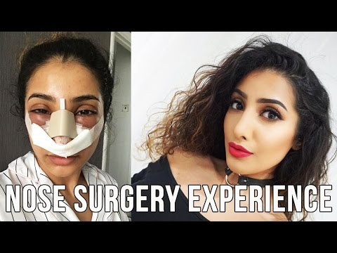 My Nose Surgery Experience VLOG